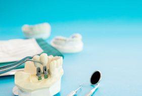 """המרכז לבריאות השן - ד""""ר רמי פטררו - השתלת שיניים בחוסר עצם"""