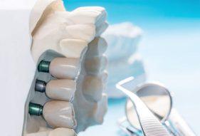 """המרכז לבריאות השן - ד""""ר רמי פטררו - שתלים דנטליים"""