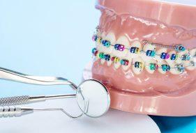 """המרכז לבריאות השן - ד""""ר רמי פטררו - כמה עולה יישור שיניים"""