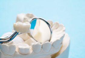 """המרכז לבריאות השן - ד""""ר רמי פטררו - כתרים דיגיטליים"""