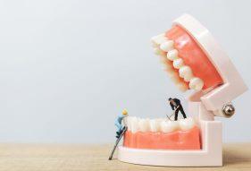 """המרכז לבריאות השן - ד""""ר רמי פטררו - גשר פנימי לשיניים"""
