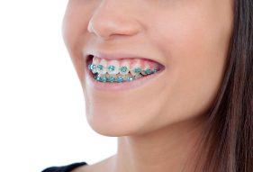 """המרכז לבריאות השן - ד""""ר רמי פטררו - גשר בשיניים בקריות"""