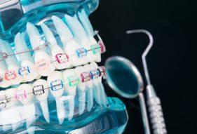 """המרכז לבריאות השן - ד""""ר רמי פטררו - יישור שיניים בקריות"""