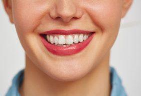 """המרכז לבריאות השן - ד""""ר רמי פטררו - אסתטיקה של הפה"""