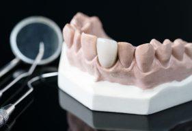 """המרכז לבריאות השן - ד""""ר רמי פטררו - שתלים ביום אחד"""