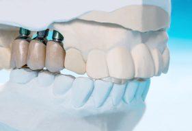"""המרכז לבריאות השן - ד""""ר רמי פטררו - השתלת שיניים ביום אחד"""