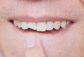 """המרכז לבריאות השן - ד""""ר רמי פטררו - השלמת שן שבורה"""