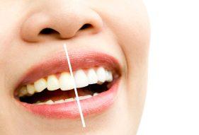 """המרכז לבריאות השן - ד""""ר רמי פטררו - הלבנת שיניים"""
