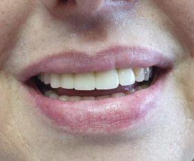 """המרכז לבריאות השן - ד""""ר רמי פטררו - אחרי 3"""