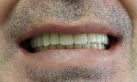 """המרכז לבריאות השן - ד""""ר רמי פטררו - אחרי 4"""