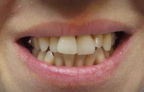 """המרכז לבריאות השן - ד""""ר רמי פטררו - לפני 1"""