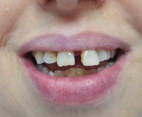 """המרכז לבריאות השן - ד""""ר רמי פטררו - לפני 3"""