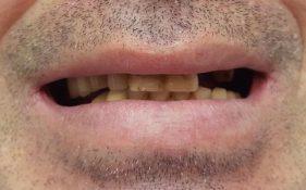 """המרכז לבריאות השן - ד""""ר רמי פטררו - לפני 4"""