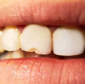 השלמת שן קדמית